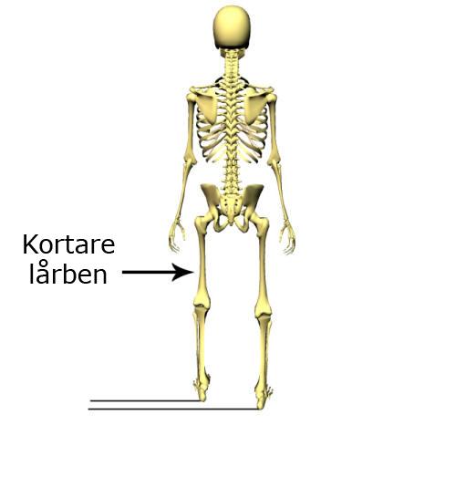Här är vissas en strukturell benlängdsskillnad där femur (lårbenet) är kortare på vänster sida.