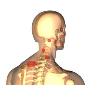 Nackspärr kan sitta på olika nivåer i halsryggen med påverkan av muskler och leder.