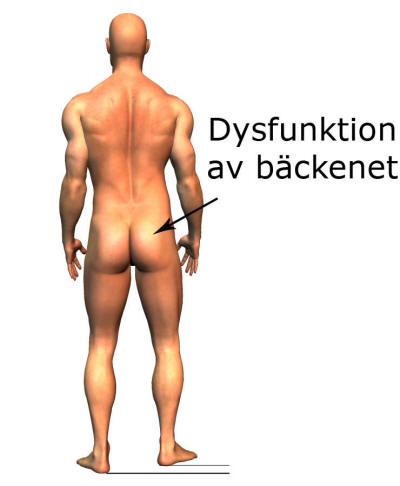 Inflammation i bäckenet symtom