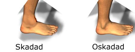 stukning av foten