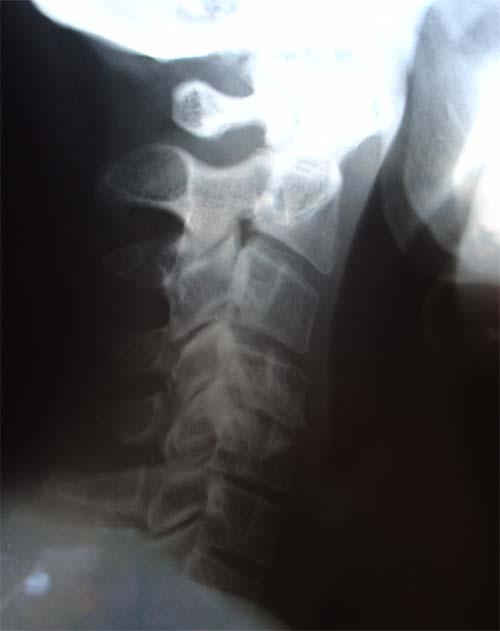 artros i halsryggen