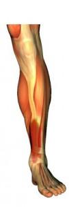 Benhinneinflammation eller medial tibiaperiostit,.