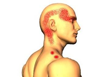 Trapezius övre del är antagligen vanligaste muskeln som drabbas triggerpunkter men på kursen får lära dig om triggerpunkter i ett 50-tal muskler till.